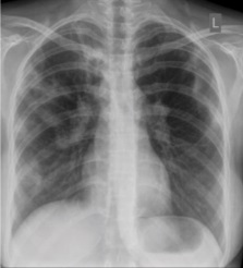 KGIC tuberculosis