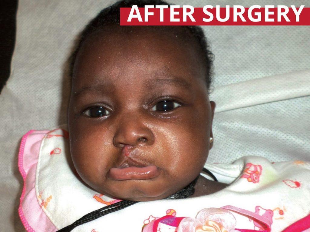 Fatou's free surgery
